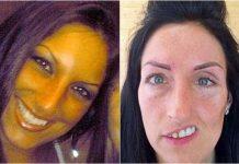 Hành trình chiến đấu với ung thư của người phụ nữ bị cắt nửa mặt