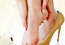 Đeo giày cao gót nhiều dẫn đến u dây thần kinh Morton