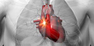 Giải pháp giúp tim không đập quá nhanh