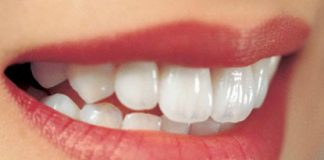 Hướng dẫn 5 bí quyết cho hàm răng trắng sáng