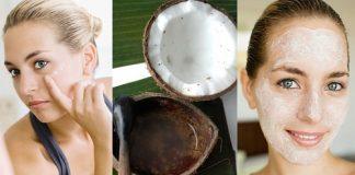 Bí quyết trị mụn bằng dầu dừa hiệu quả cho chị em
