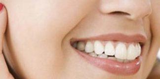 Cách làm trắng răng hiệu quả