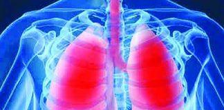 Tìm hiểu về bệnh viêm phổi và cách phòng ngừa viêm phổi