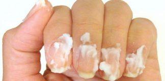 5 mẹo hay để móng tay sáng bóng ngày lạnh