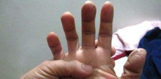 Điều trị bệnh cước chân tay bằng những bài thuốc đơn giản